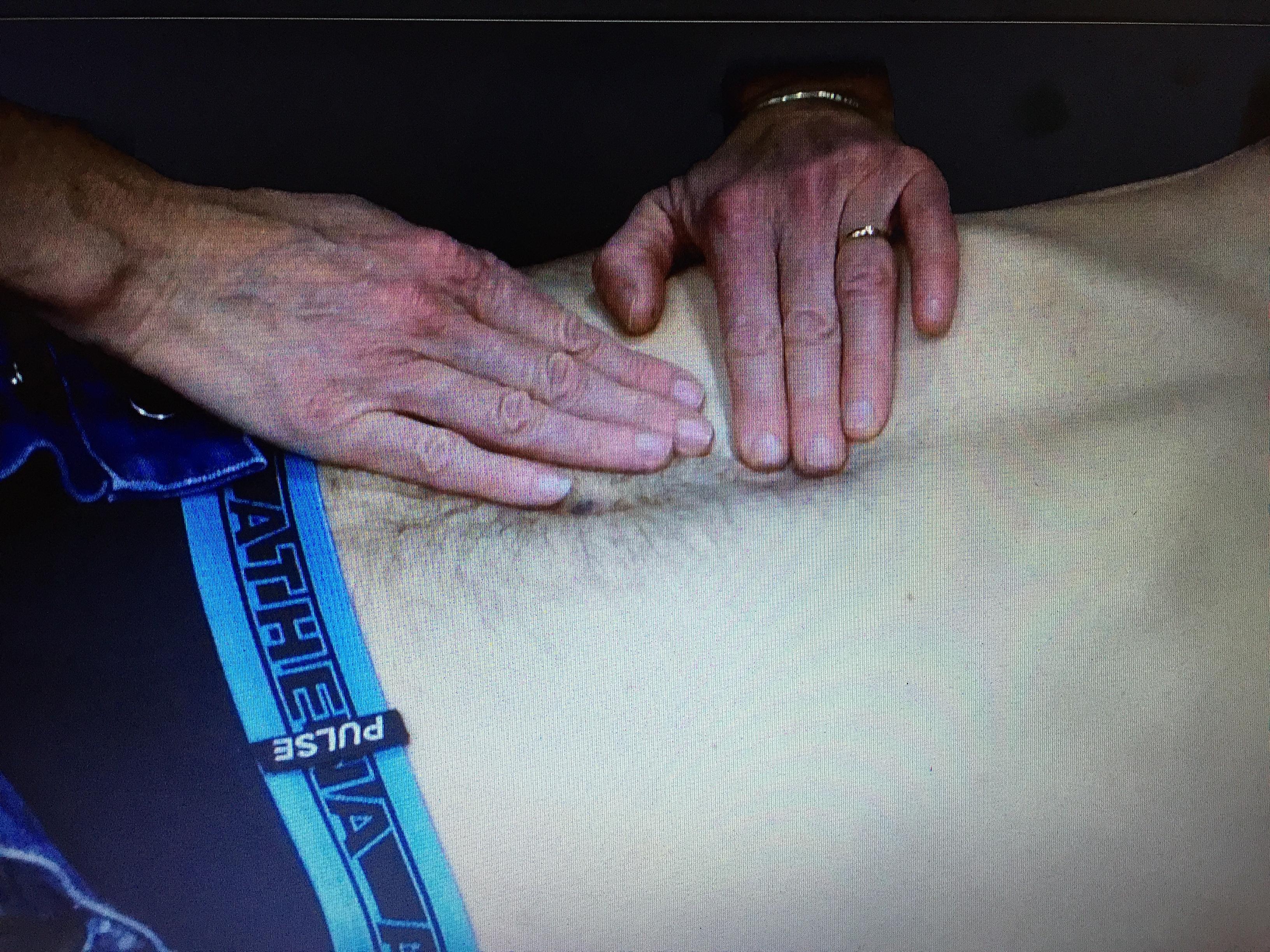 Protocole séance thérapie manuelle Poyet